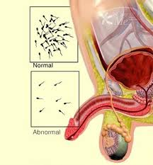 Only effective test for male infertility is semen analysis